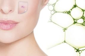 biodroga md acne and impure skin solutions