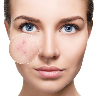 biodroga acne solutions