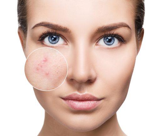 biodroga acne solutions