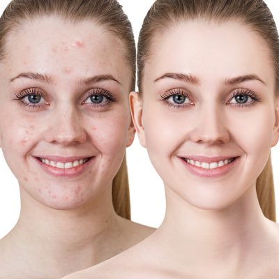 best treatment for acne biodroga md