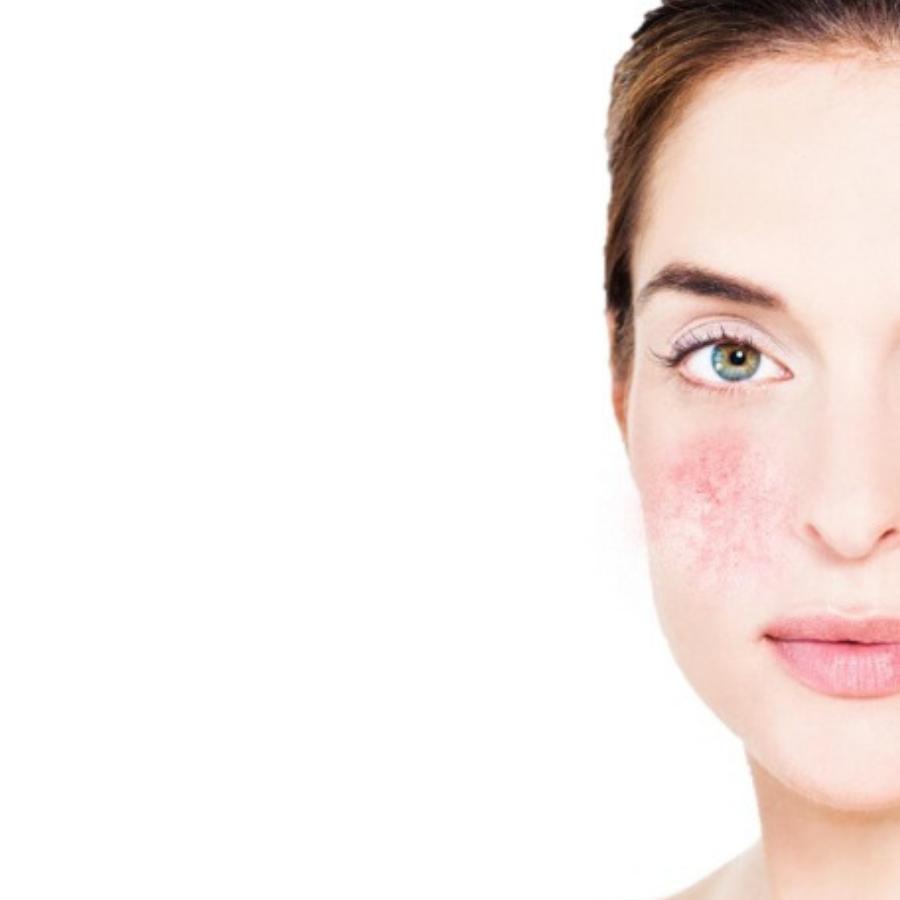 Sensitive Skin: Biodroga MD Sensitive Skin Starter Kit